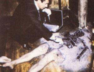 Spontaneous Human Combustion - Pembakaran spontan manusia Shc